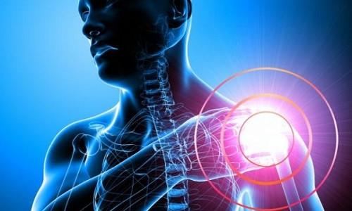 Fraktur des chirurgischen Hals der Schulter: Behandlung und Genesung