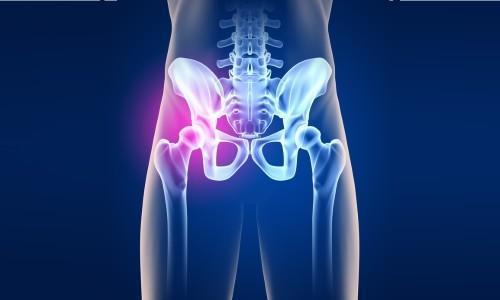 knochenkrebs symptome hüfte